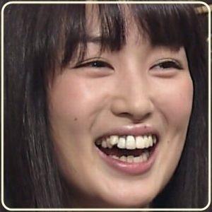 あごや歯を整形したという噂があるのですが、まぁ歯は整形のうちには入らないと思うので矯正したのは間違いなさそうです!